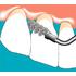 Sonicflex clean - набор насадок и щетки Sono для профессиональной механической чистки зубов (снятия зубных отложений) | KaVo (Германия)